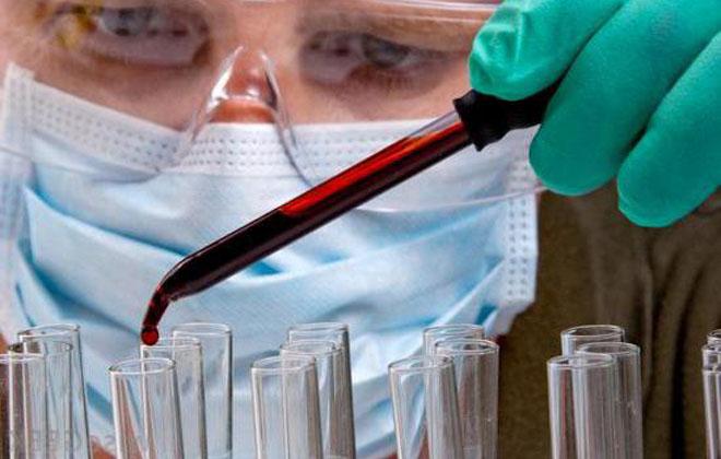 Миелопролиферативное заболевание крови: синдром, что это такое, лечение