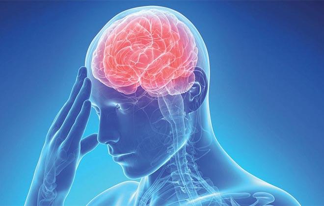 Инсульт головного мозка