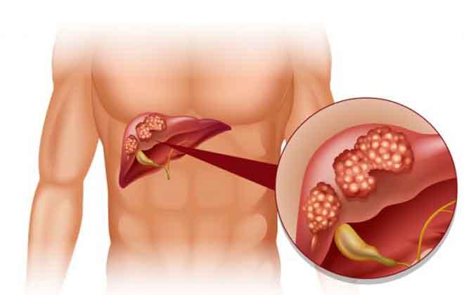 Кровотечение при циррозе