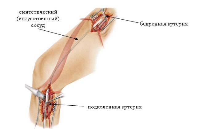 Лечение аневризмы бедренной артерии
