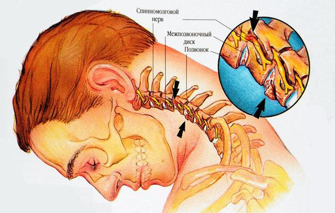 Остеохондроза шейного отдела