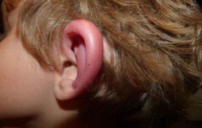 Отогематома на ухе
