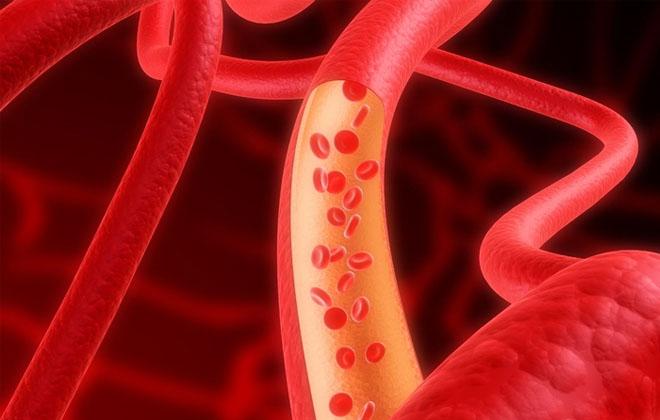 Разновидность анемии