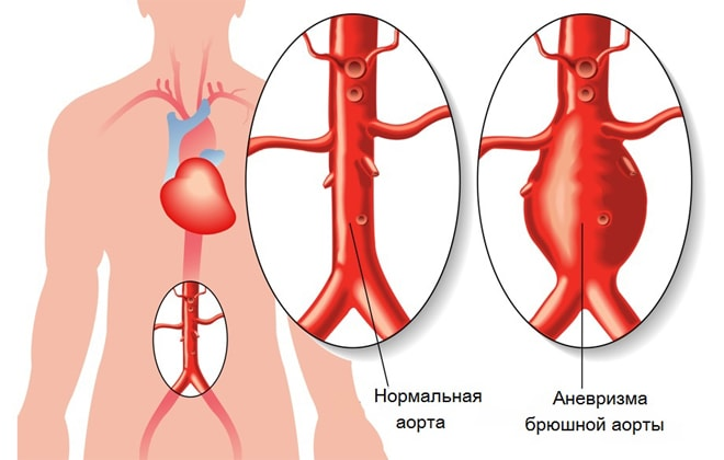 Тромб в одинцовской аорте
