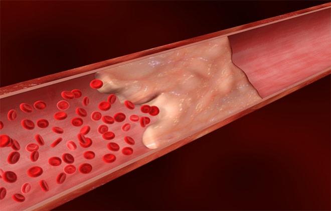 Тромбоэмболия медикаментозна