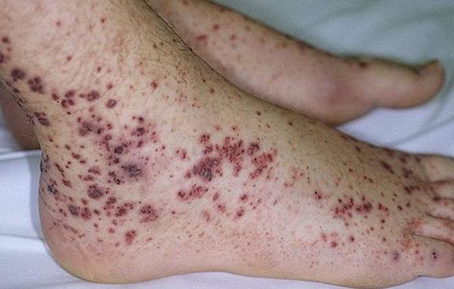 Тромбоцитопеническая пурпура на ноге