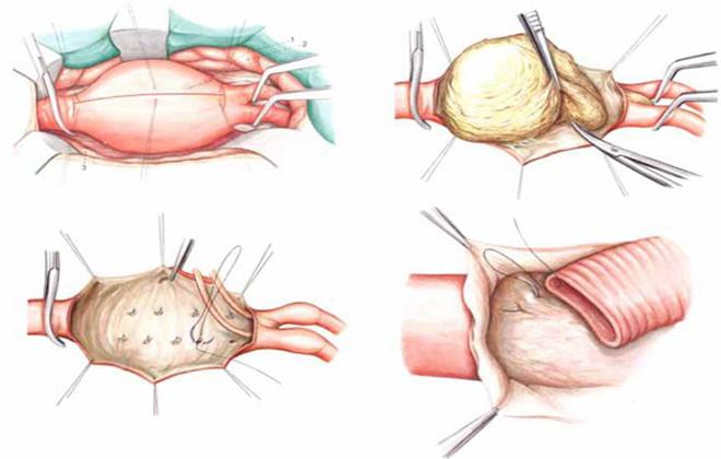 Тромбоз аорты в животе