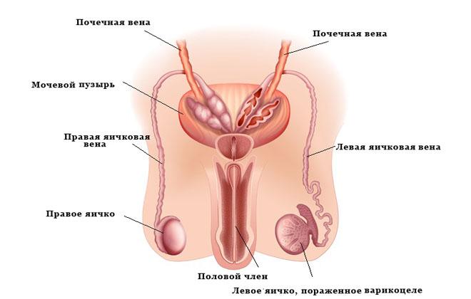 Варикоцеле, и ее влияние на потенцию