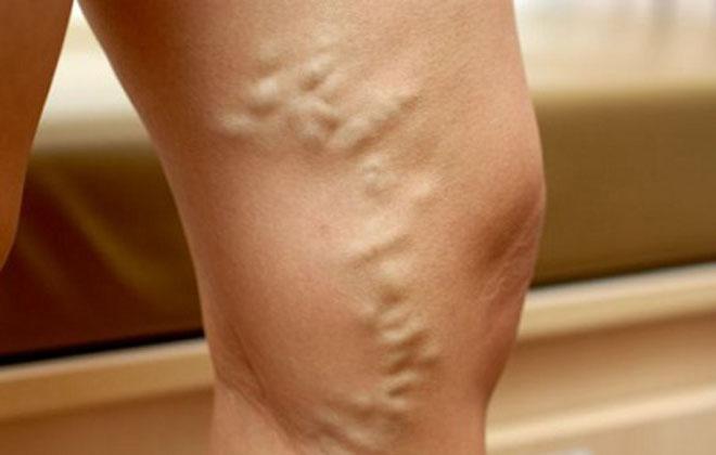 Варикозный узел на ногах