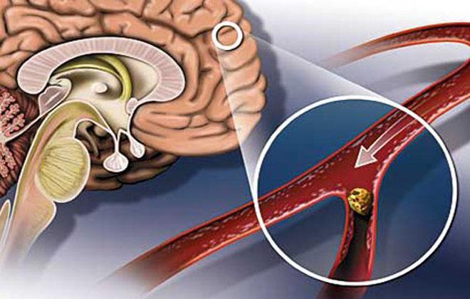Внутриартериальный тромболизис